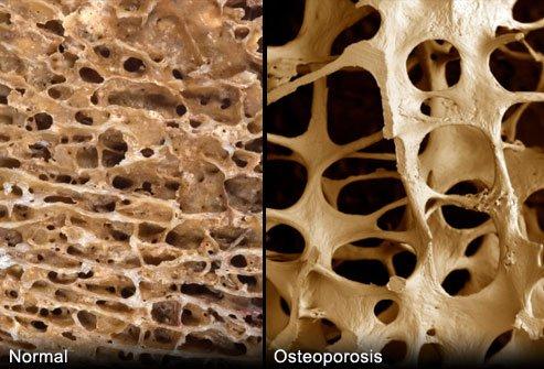 photo_of_porous_bones
